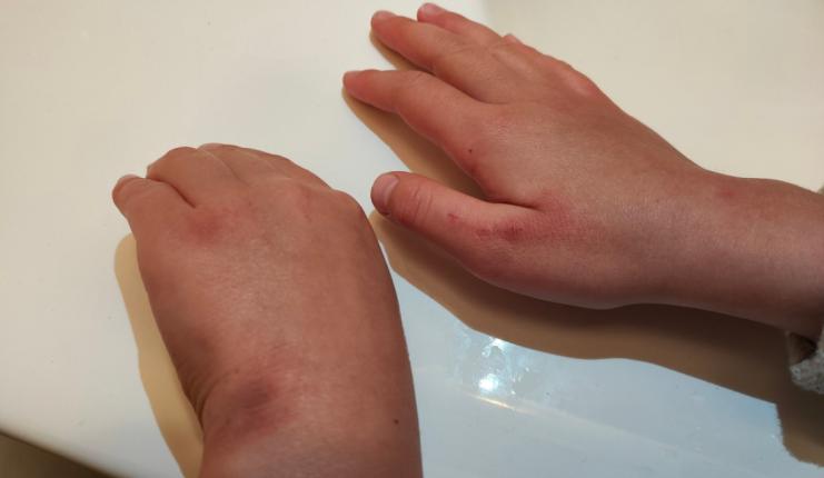 ręce córki poseł Siarkowskiej po tygodniu dezynfekcji w szkole/ fot. Twitter